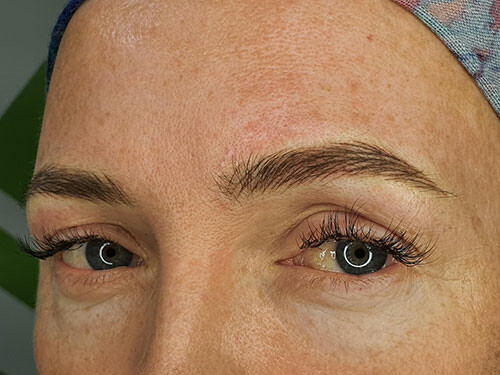 18-24 months Top Up – Micropigmentation