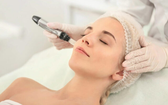 Microneedling – Collagen Induction Therapy